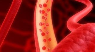 Как диагностировать атеросклероз сосудов
