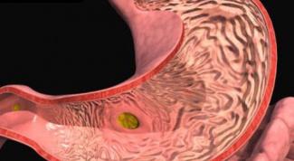 Как лечить хронический гастродуоденит