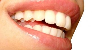 Как быстро отбелить зубы
