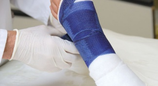 How to remove swelling after a fracture
