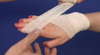 Как накладывать жгут при артериальном кровотечении