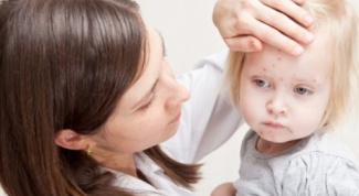 How to distinguish chicken pox from allergies