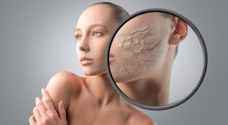 Как устранить шелушение кожи
