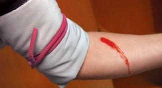 Как остановить кровотечение  при ранении