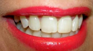 Как отбелить зубы безопасно
