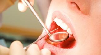 Как обезболить зуб мудрости