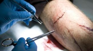 Как обработать резаную рану