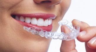 Как выбрать клинику, чтобы выровнять зубы