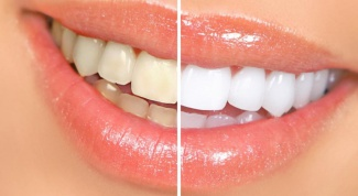 How to whiten teeth in a week