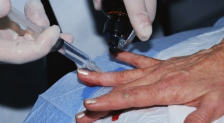 Как очистить рану