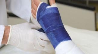 Что нужно делать после снятия гипса
