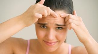 Причины, симптомы и лечение угревой болезни