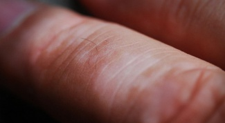 Как и чем лечить витилиго