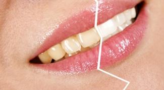 Отбеливаем зубы и лечим десны