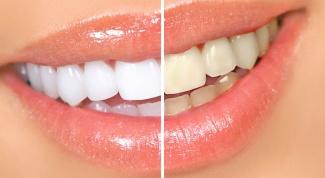 Что делать, чтобы зубы оставались белыми