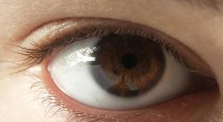 Какие ограничения после лазерной коррекции зрения?