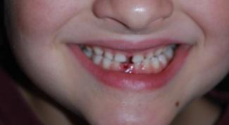 Что делать, если выбит зуб