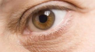 Как избавиться от темных кругов под глазами за одну неделю