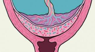 Предлежание плаценты: диагностика, лечение, последствия