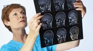 Серозный менингит: симптомы, лечение, последствия