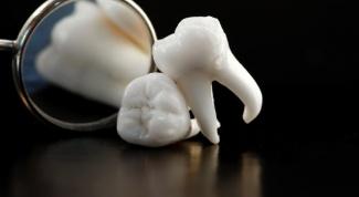 Зуб мудрости: удалять или лечить