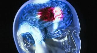 Как определить инсульт до приезда врача