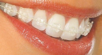 When to put braces