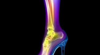 Вред высоких каблуков
