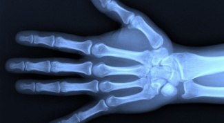 Harmful x-rays