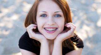 Сколько стоят скобы для выравнивания зубов