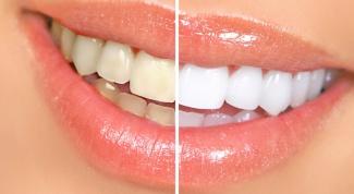 Что такое дисколорит зубов