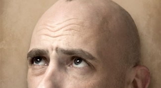 Почему выпадают волосы у мужчин