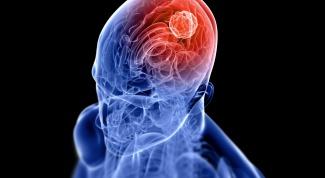 Лечится ли рак мозга? Борьба за жизнь!