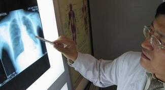 Рак легких: симптомы, причины, лечение