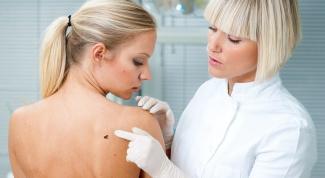 Что лечит кожный врач