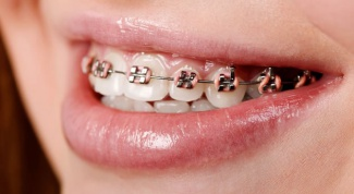Does it hurt to put braces?