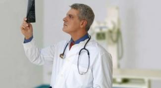 Какой врач лечит артрозы и артриты