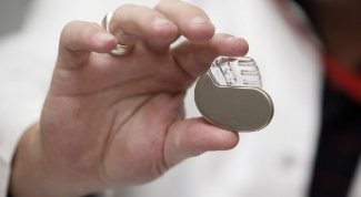 Как вживляют кардиостимулятор