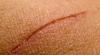Как избавиться от шрама с помощью витамина E