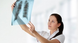 The first symptoms of tuberculosis