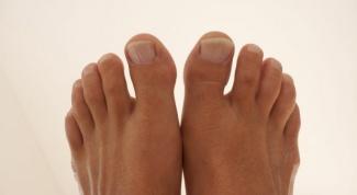 Как удалить вросший ноготь без хирургического вмешательства
