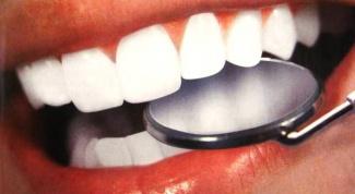 Как питаться, чтобы зубы были здоровыми