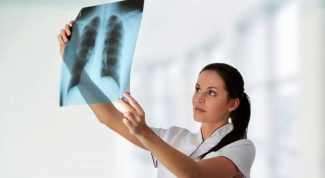 How often do x-rays