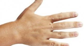 Как удалить бородавку на руке