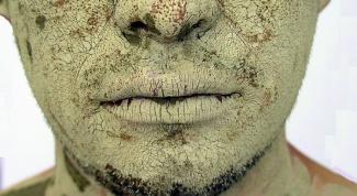 Как убрать шелушение и покраснение под носом