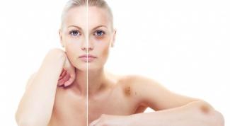 Почему на теле появляются синяки безо всяких причин