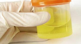 Белок в моче: причины, диагностика и лечение