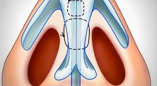 Искривление носовой перегородки: стоит ли исправлять?