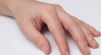Problems with nails: who to contact