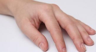 Проблемы с ногтями: к кому обратиться